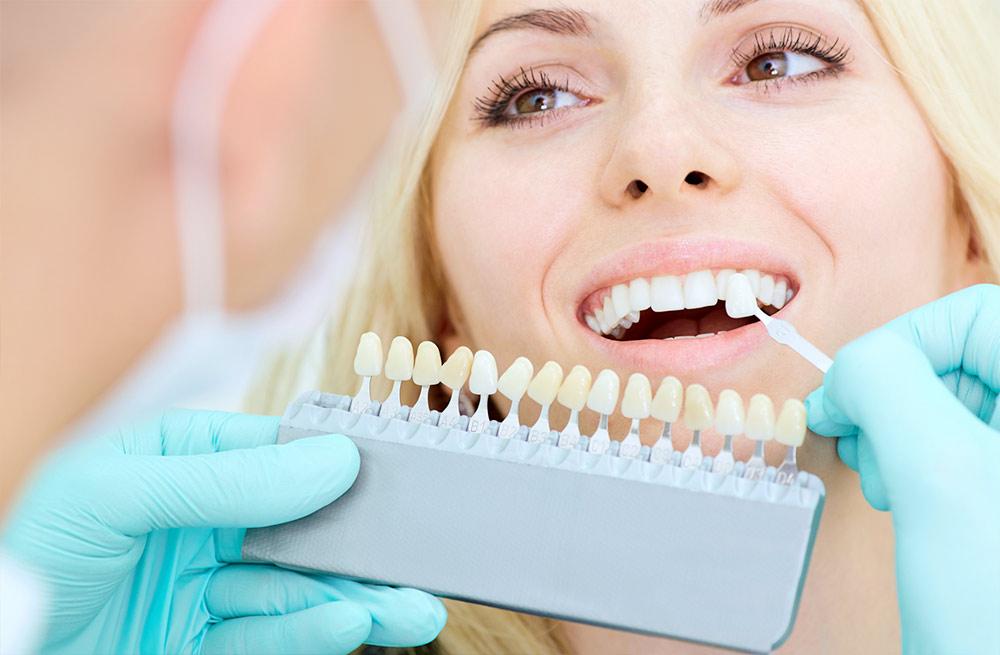 Dentista a Sernaglia faccette estetiche