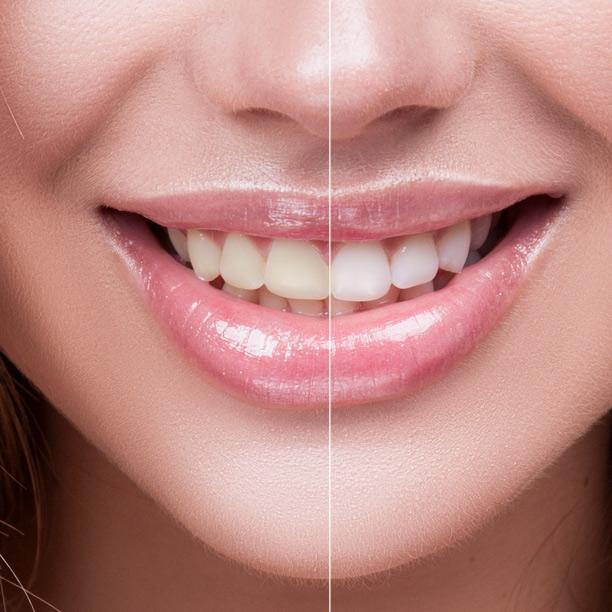 estetica-dentale-1