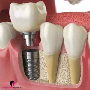 impianti-dentali-a-carico-immediato_